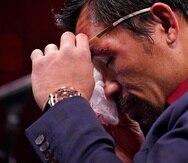 Manny Pacquiao, de Filipinas, se limpia los ojos en la conferencia de prensa después de su derrota frente al cubano Yordenis Ugas.