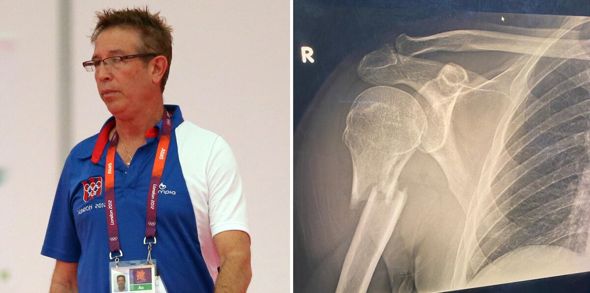 Impactantes fotos tras accidente del veterano entrenador Cano Colón