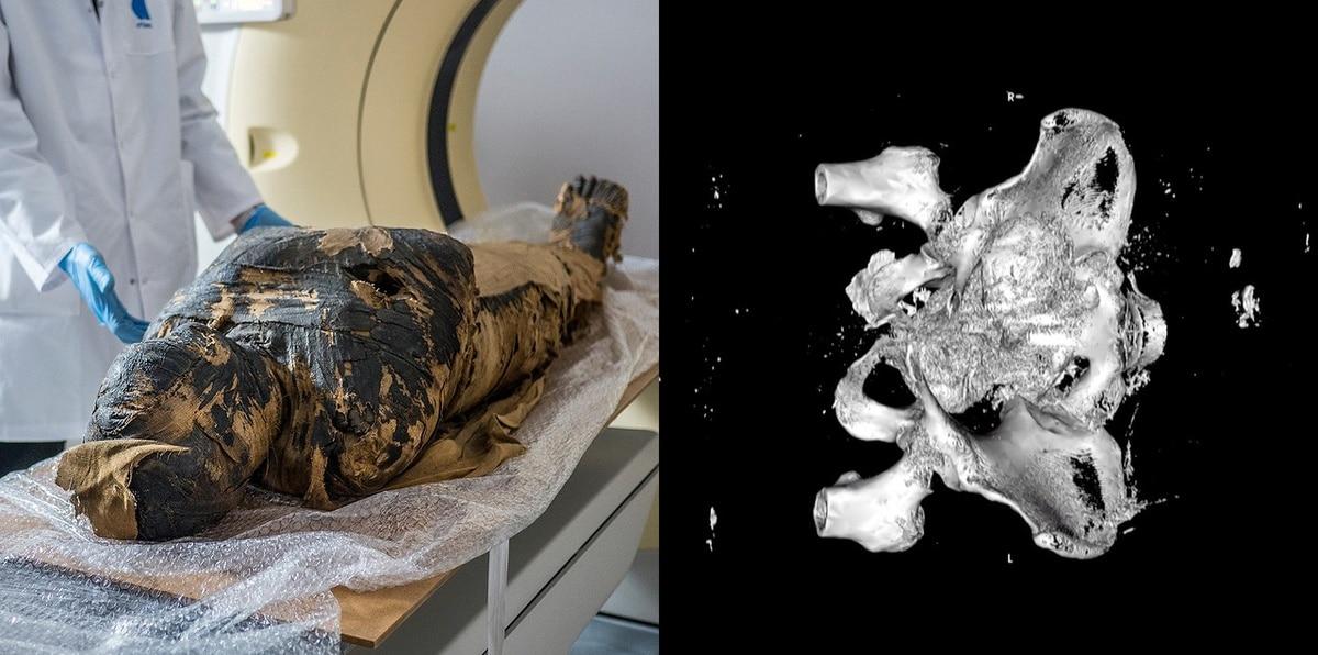 Descubren la primera momia egipcia embarazada