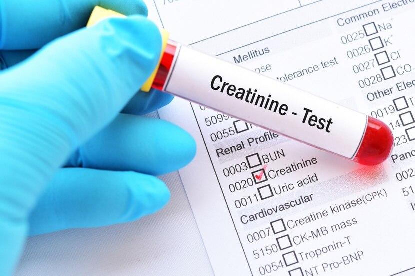 Uno de los parámetros utilizados para detectar enfermedad renal es la detección de la creatinina en la sangre.