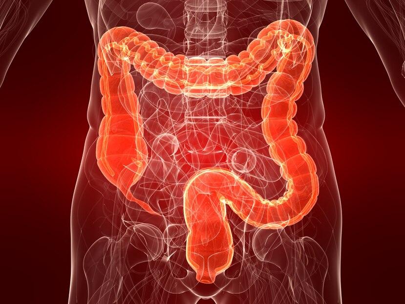 Composición fotográfica del cáncer de colon