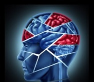 Cada día existe más evidencia que demuestra la capacidad del cerebro para recuperarse luego de un derrame cerebral.