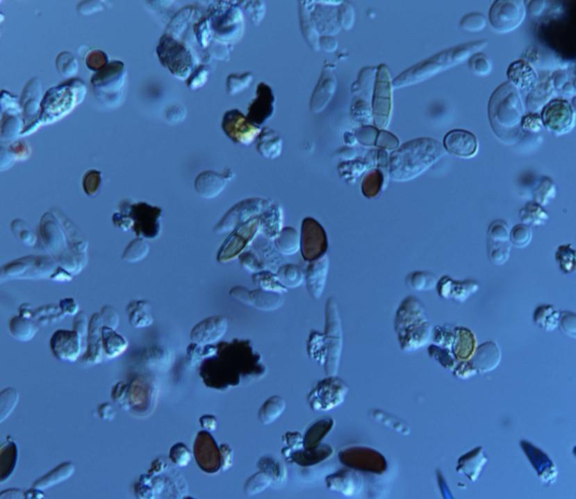 Laminilla del Departamento de Microbiología del Recinto de Ciencias Médicas que muestra las partículas de polvo del Sahara y de esporas de hongo que se midieron el miércoles, 2 de septiembre de 2020.